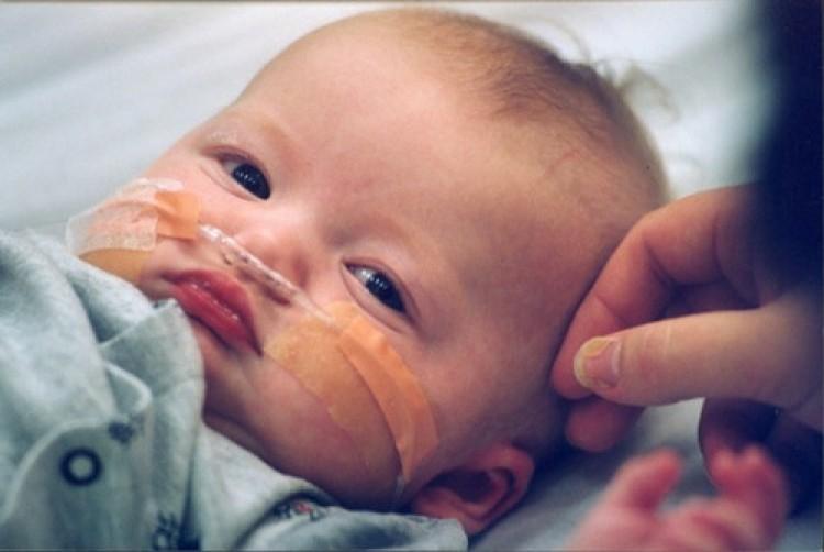 tawar-measles-e1350847708404
